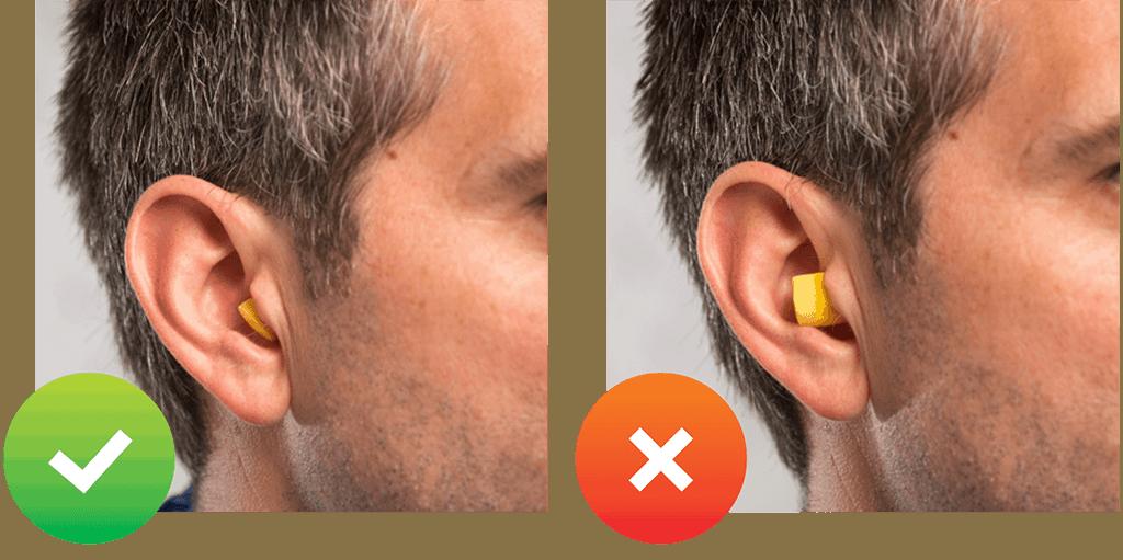 Gehörschutzstöpsel Richtig Tragen Tipps Vom Hersteller